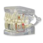 Clear Human Jaw with teeth model, 1019540, 치아 모형
