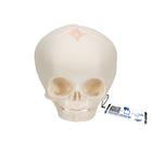 임신 30주째 태아 두개골 모형