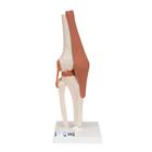 슬관절 모형 Functional Knee Joint - 3B Smart Anatomy, 1000163 [A82], 관절 모형