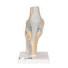 부분적 슬관절 모형, 3 파트