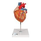 Heart, 2-times life size, 4 part, 1000268 [G12], 심장 및 순환기 모형