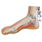 정상발