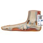 평발