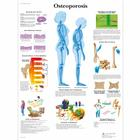 Osteoporosis Chart,VR1121UU