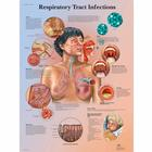 Respiratory Tract Infections Chart,VR1253UU