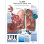 COPD Chart - Chronic Obstructive Pulmonary Disease,VR1329UU