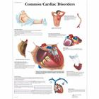 Common Cardiac Disorders Chart, 4006680 [VR1343UU], 심장 건강 및 운동 교육