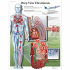 Deep Vein Thrombosis Chart, 4006685 [VR1368UU], 심혈관계