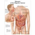 Diseases of the Digestive System Chart,VR1431UU