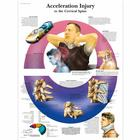 Acceleration Injury to the Cervical Spine Chart, 4006724 [VR1761UU], 골격계