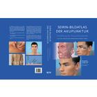Picture Atlas of Acupuncture points,W11911