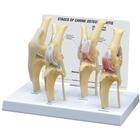 Canine Osteoarthritis Knee Model, Normal + 3 Conditions, 1019577 [W33373], 동물 질병