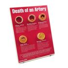 Death of An Artery Easel Display, 1018290 [W43121], 심장 건강 및 운동 교육