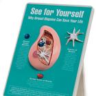 Why Breast Biopsies Can Save Your Life Easel Display, 1018297 [W43136], 건강교육
