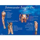 Intramuscular Injection Sites Poster,W44783